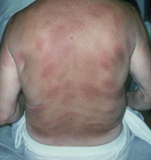 Erythema Migrans /Lyme Disease (Erythema Chronicum Migrans ...