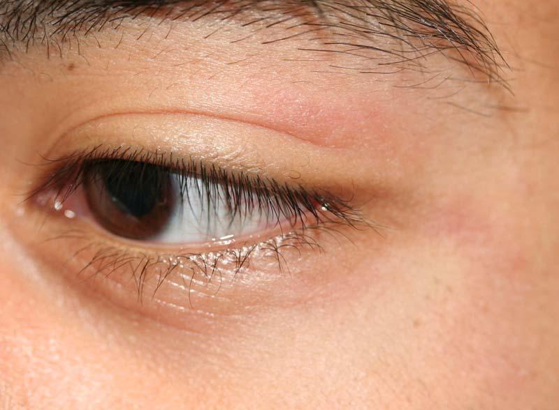 eczema eyelids - photo #32