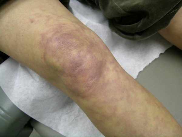 Annular purpuric rash on the lower extremities