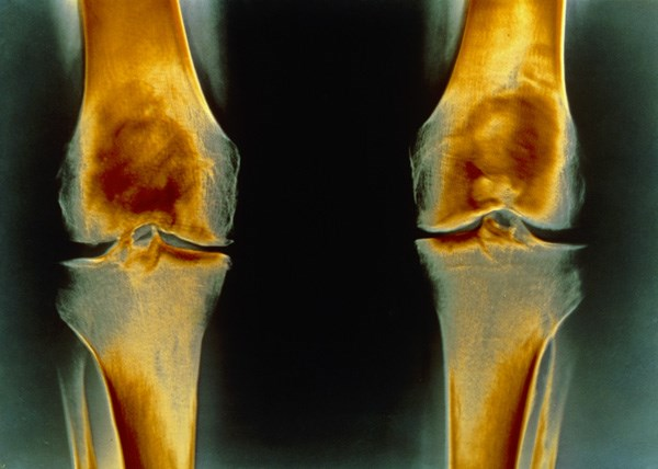 Arthroscopic surgery may not be beneficial for moderate-to-severe knee osteoarthritis