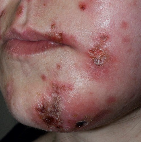 For MRSA abscesses that do not require antibiotic treatment, simple incision and drainage will suffi