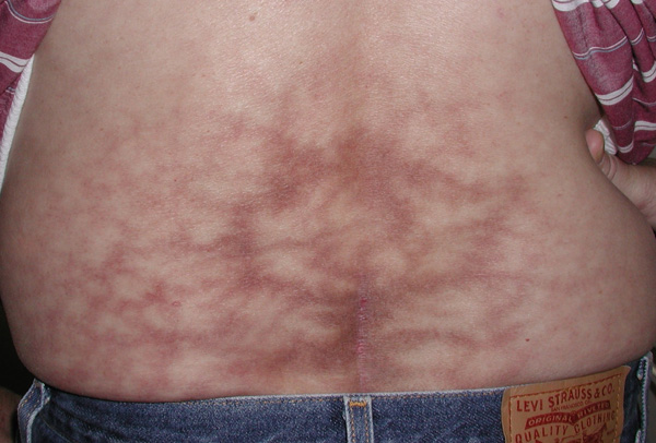 Asymptomatic Netlike Red Brown Patch On The Back The
