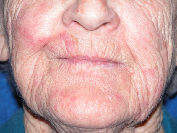 painful perioral rash with unpredictable flare-ups