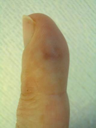 a tender finger papule fever and abdominal pain the clinical advisor