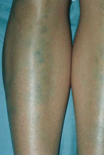 Pigmentation on the legs of a young female athlete