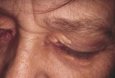Discrete yellow lesions on the eyelid