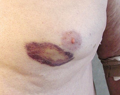 Peculiar violaceous, atraumatic rash