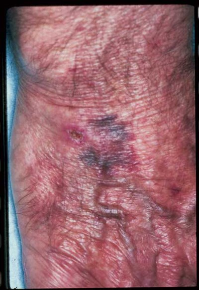 Purple blotches in an elderly man with atrial fibrillation