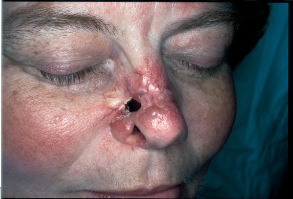 Recurrent deep ulceration exposes the nasal septum