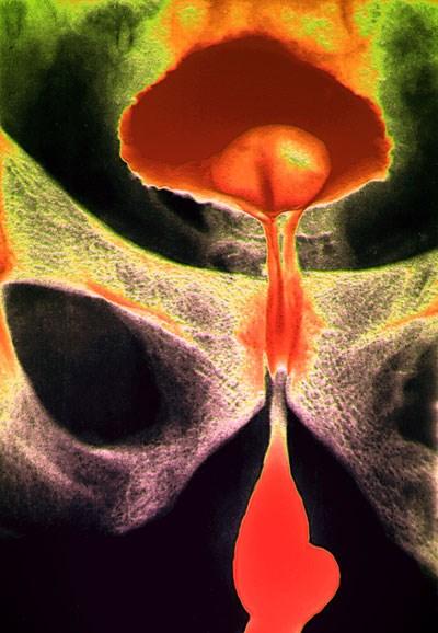 Benign prostatic hyperplasia may cause stenosis of the urethra