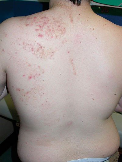 Acne vulgaris on the back of a healthy 13-year-old boy