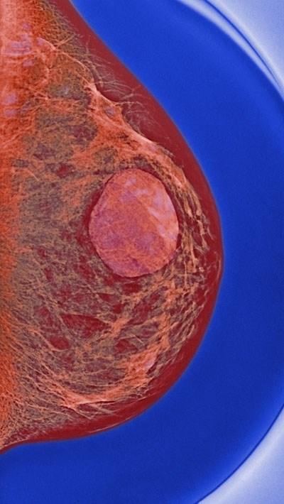 Biopsy all breast cysts?