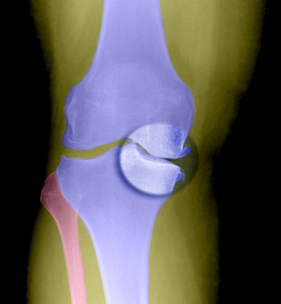 X-ray shows joint-space narrowing in a knee with osteoarthritis