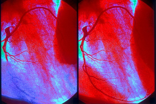 Angiogram of an MI (left) and a normal coronary artery (right)