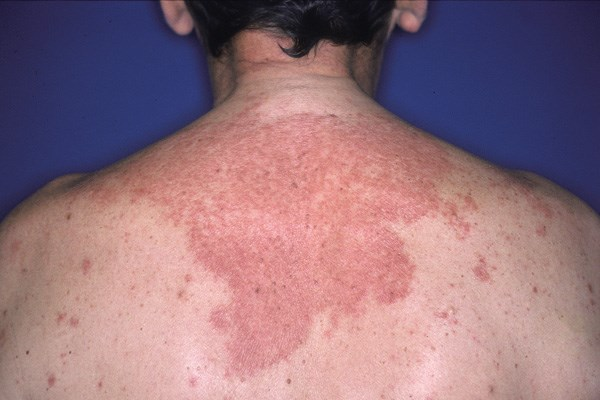 Allergic contact dermatitis results from cutaneous contact with a specific allergen.