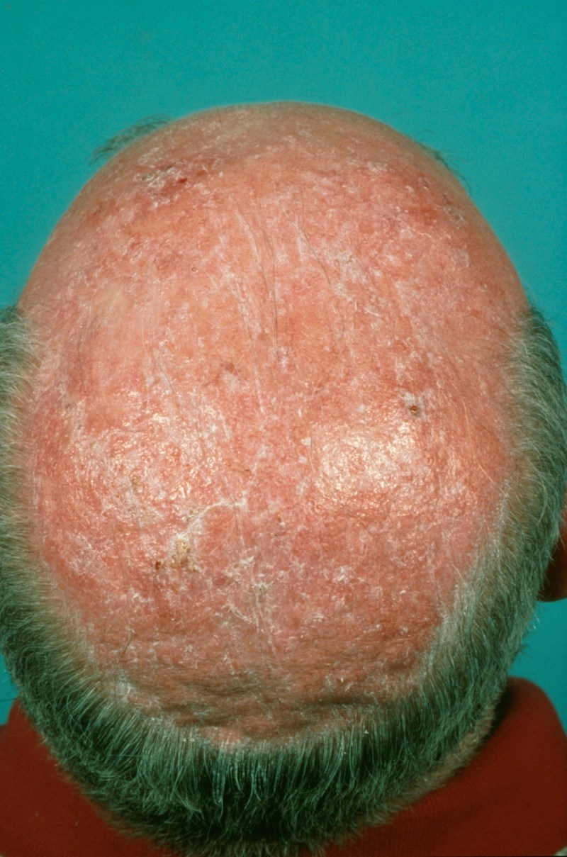 Actinic keratoses are typical in fair-skinned and elderly people