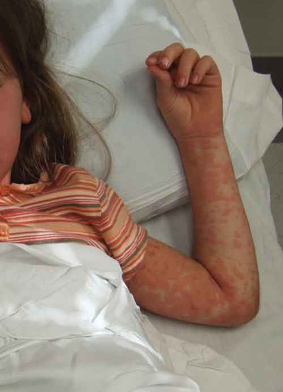 Severe pruritic rash,  fever, and malaise