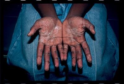 Enlarging vesicular peeling of the palms