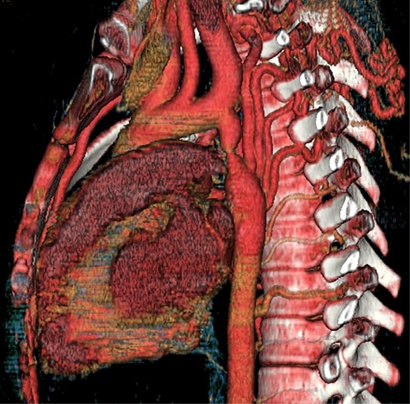 Diagnosing coarctation of the aorta