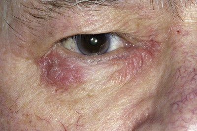 Recurrent periorbital dermatitis