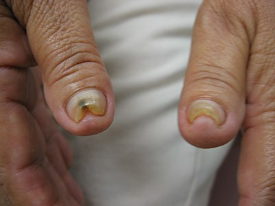 A case of intractable, familial nail and skin thickening