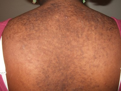 Brown bumps that evolved into verrucous plaques