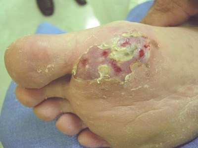 Nonhealing painless ulcer on the sole
