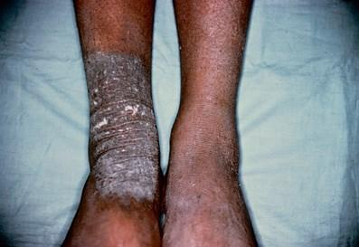 Persistent plaque with severe intermittent pruritus
