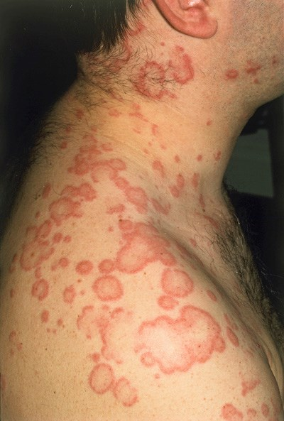 Itchy pink papules, or wheals, are characteristic of drug-induced urticaria.