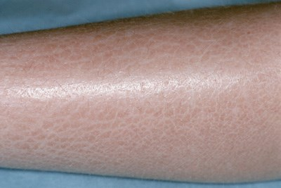 Ichthyosis features abnormal keratinization and resulting in scaling of the skin.