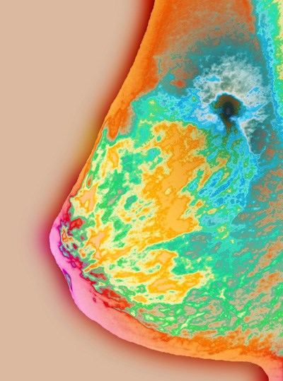Colored x-ray of the breast reveals a malignant tumor (black).