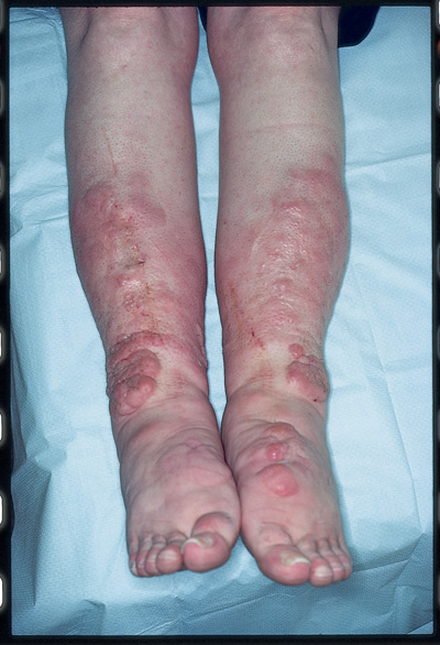 Flesh-colored Nodules On The Shins And Feet