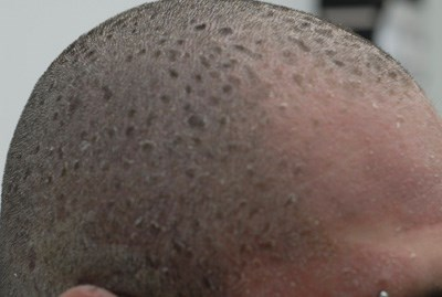Scaly plaques spread from head to toe