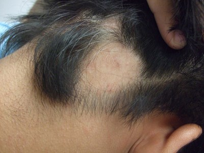 Patches of hair loss