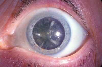 Statin use may increase cataract risk