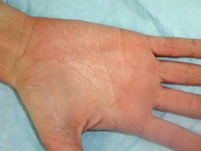Job hiv Hand