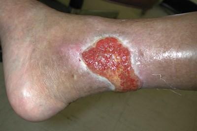 Cutaneous lesions