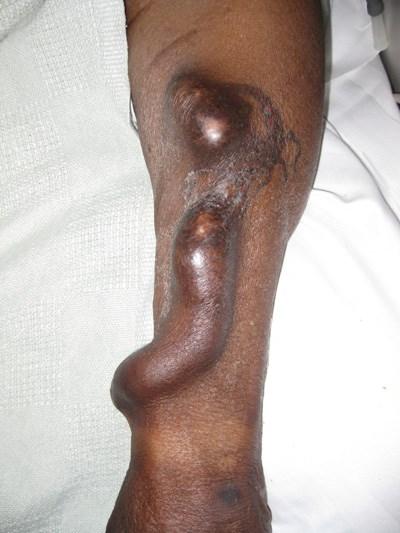 Endoscopic surgery for fistula creation