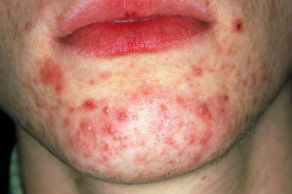 Acne vulgaris