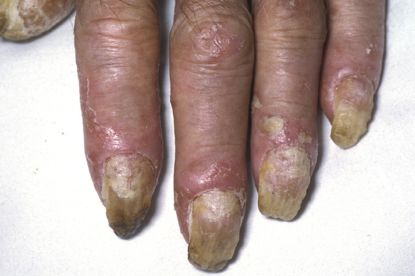 Psoriasis Of The Nail