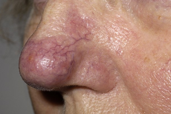 Rosacea May Be Independently Linked to Parkinson's Disease