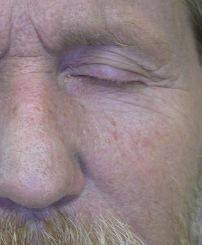 Discoloration of the face, neck and hands