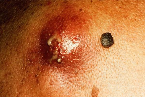 Delafloxacin Equally Effective as Vancomycin/Aztreonam for Acute Bacterial, Skin Suture Infections