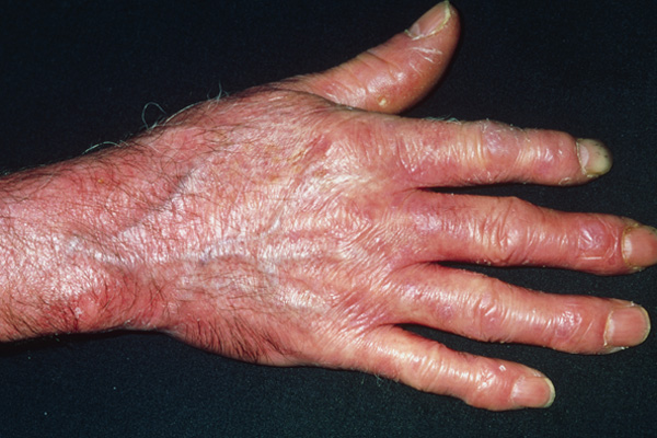 Hand with scleroderma