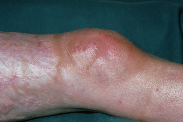 Knee with nonseptic monoarthritis and scleroderma