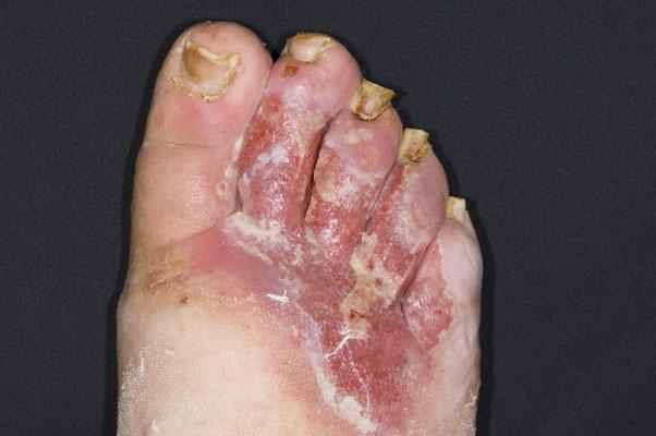 Ischemic Toes