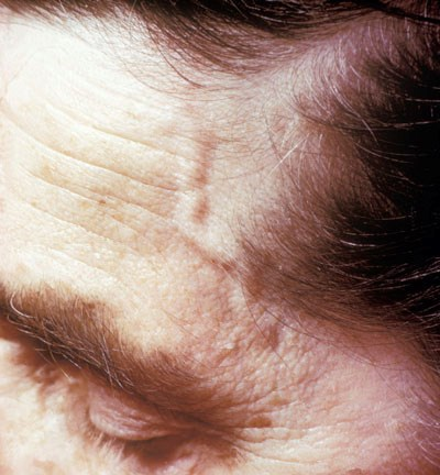 Inflammation in giant cell arteritis most often involves the arteries over the temples (shown here).