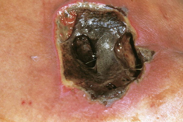 Infected pressure ulcer