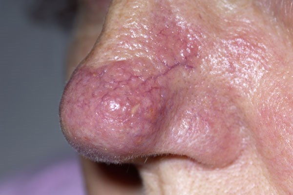 Does Rosacea Increase the Risk of Glioma?