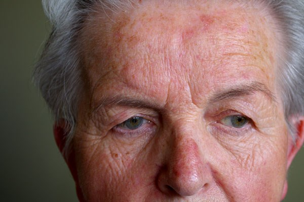 Research found an association, but no cause-and-effect relationship, between rosacea and Parkinson's.